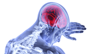 VA Releases New Findings on the Connection Between TBI and Dementia