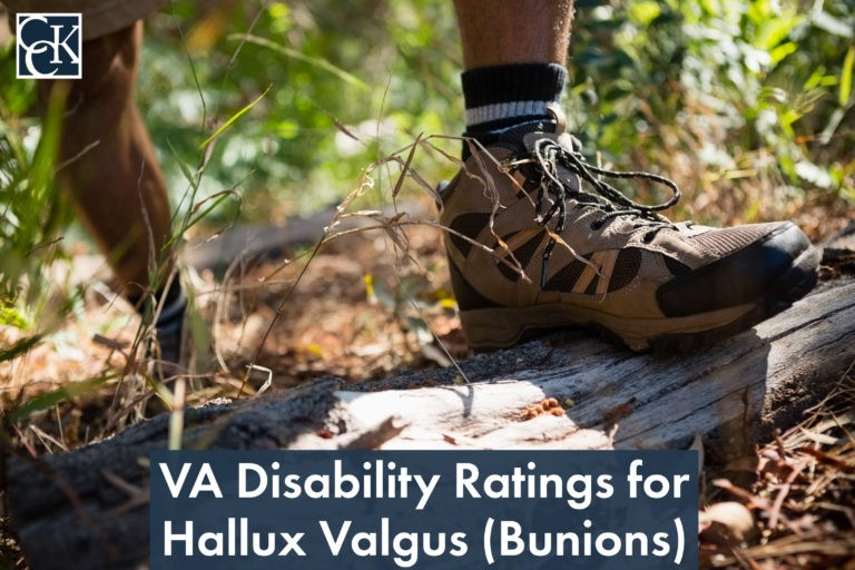 VA Disability Ratings for Hallux Valgus (Bunions)
